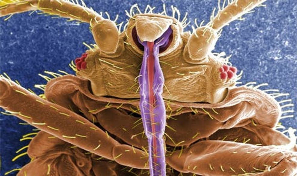 Everything you never wanted to know about bed bugs