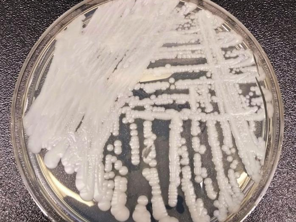 'This is the beginning': How our climate crisis threatens human health by spawning drug-resistant superbugs